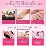Fungal Nail Treatment Cream