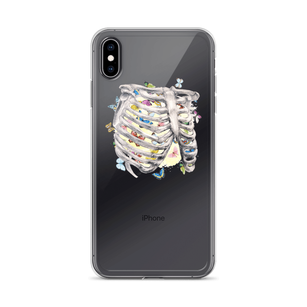 Set My Heart Aflutter IPhone Case