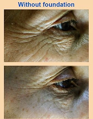 Plumps Lines, Decreases Wrinkle Depth and Brightens Pigmentation of the Eyes