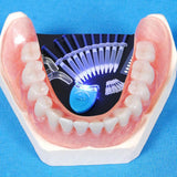 TEETH WHITENING KIT WITH LED 44% Peroxide Dental Bleaching System