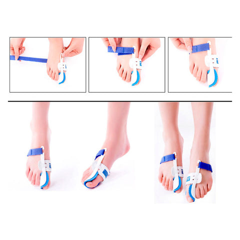 Bunion Splint Big Toes Corrector Hallux Valgus Straightener Foot