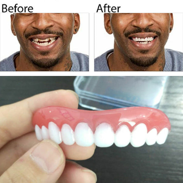 Perfect Instant Smile Fake Teeth