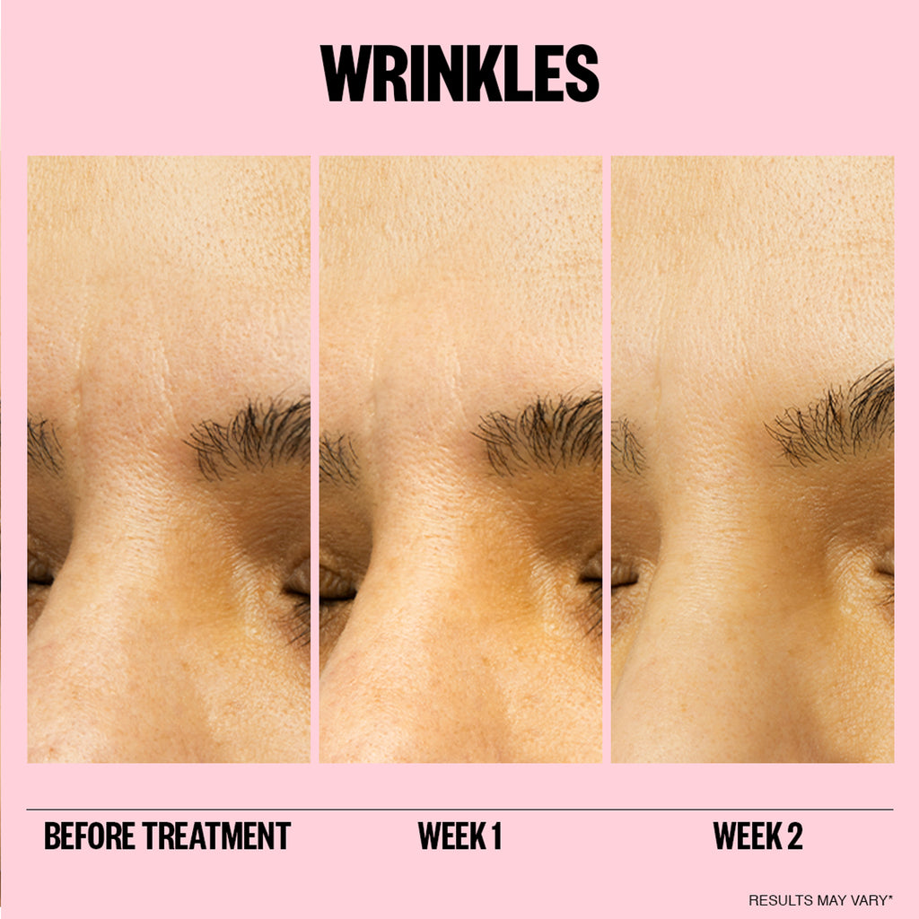 Peace Out Wrinkles