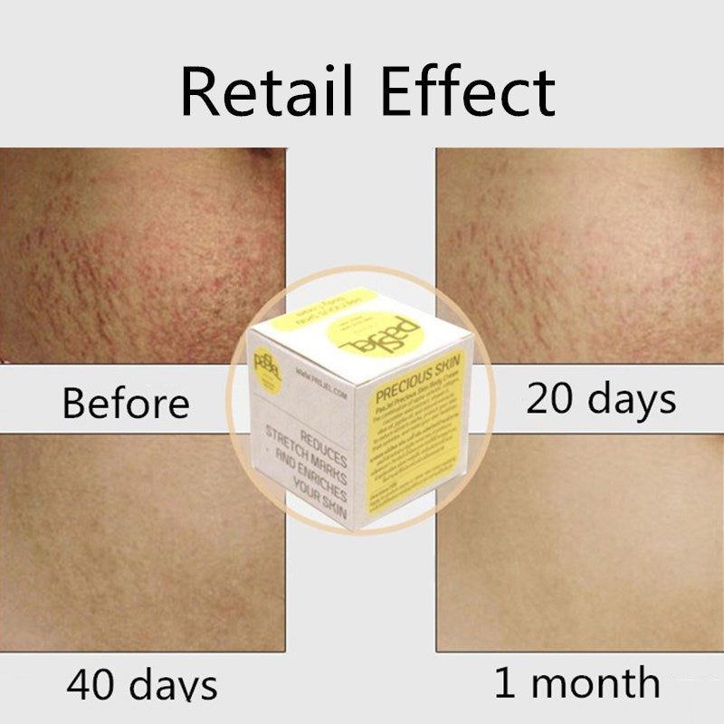 Best cream for Stretch Mark Pregnancy Scar/Obesity/Line/Wrinkles/Growth Pattern