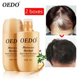 2PCS Growth anti Hair Loss Liquid 30ml dense hair fast sunburst hair growth Growth Serum Product