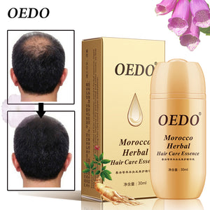 30ML Moroccan Hair Loss Treatment Ginseng Ginger Hair Growth Oil Herbal Hair Care Scalp Herbal Treatment