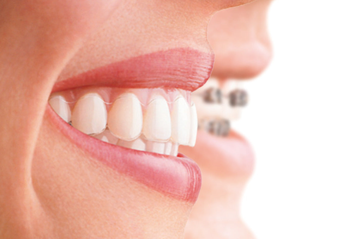 Which Invisalign Brace is Best for You?