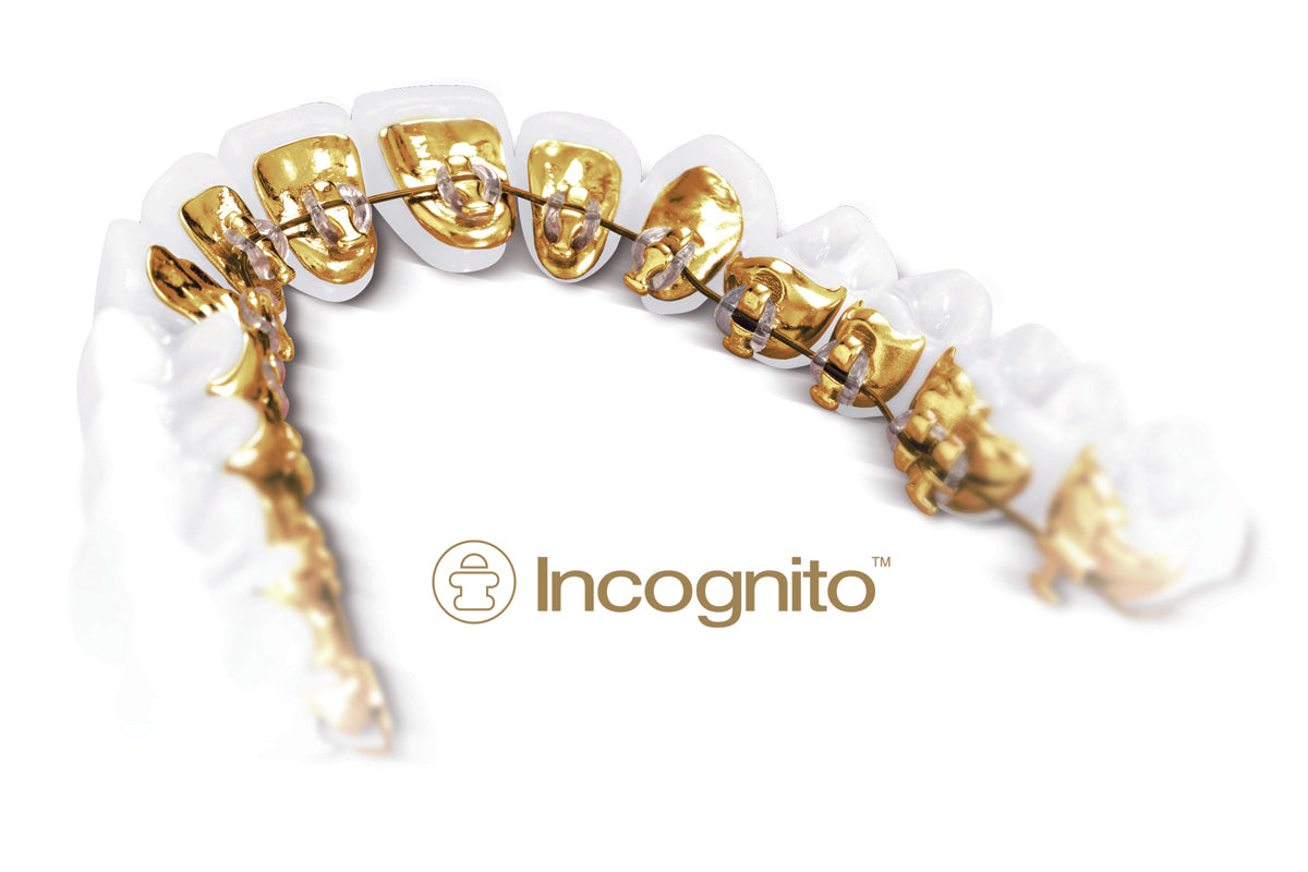 Why choose Incognito Braces in 2019?