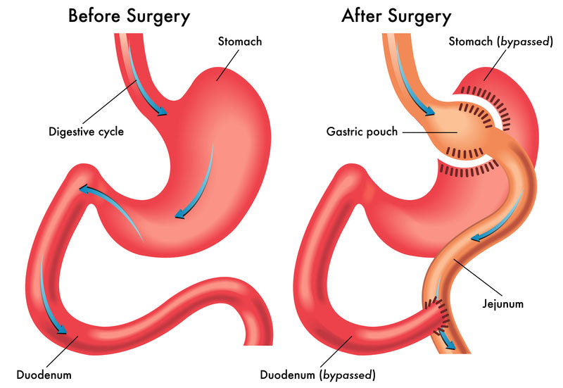 Gastric By-pass Surgery