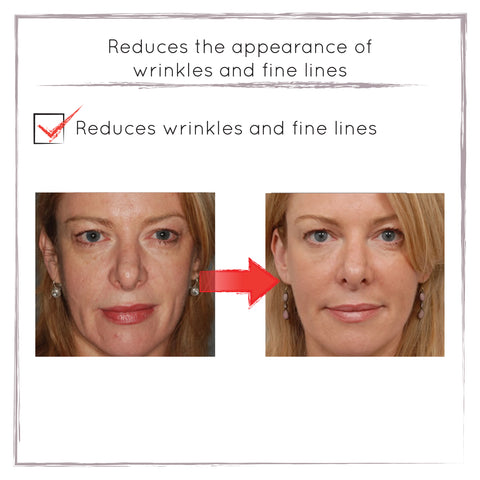 Before and After - Reduced Fine Lines
