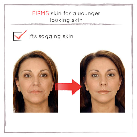 Before and After - Skin Lifting