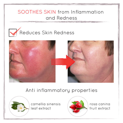 Before and After - Reduced Redness