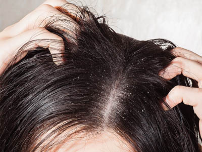 Q. My scalp is really sore and I am now suffering with hair loss. Is there anything you could recommend?