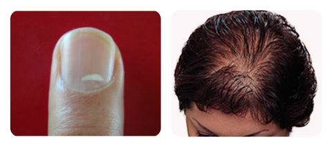 Signs of zinc deficiency. white spots on nails, white blotches on nails, hair loss zinc, hair growth zinc