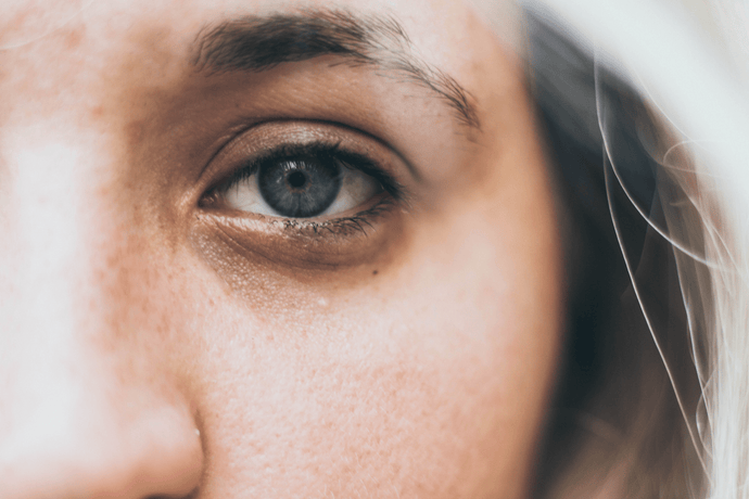 Puffy Eyes & Dark Circles: How To Treat Them!