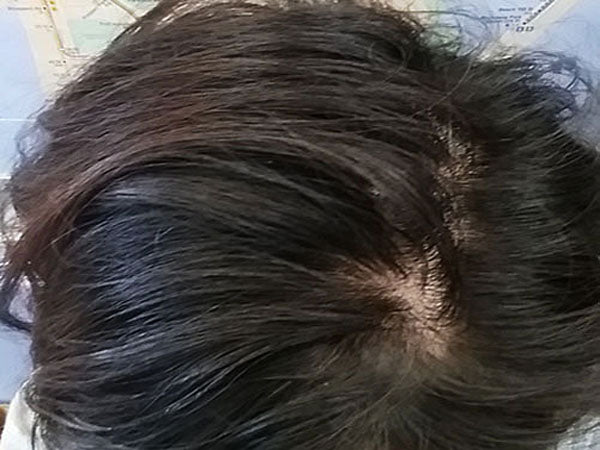 FIGHT HAIR LOSS