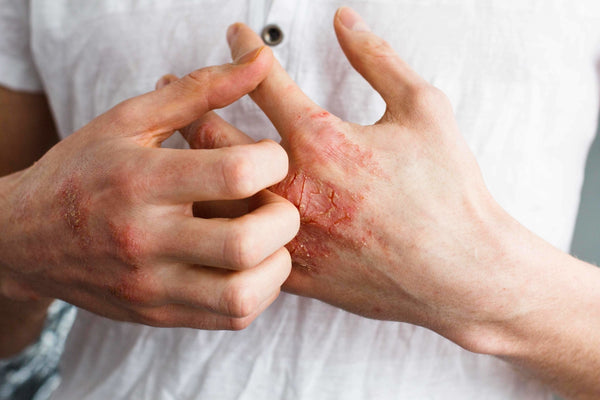 Eczema, Itching For A Solution | OrganiGrowHairCo