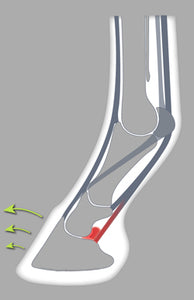 The open toe enhences breakover and limits pressure on the deep digital flexor tendon.