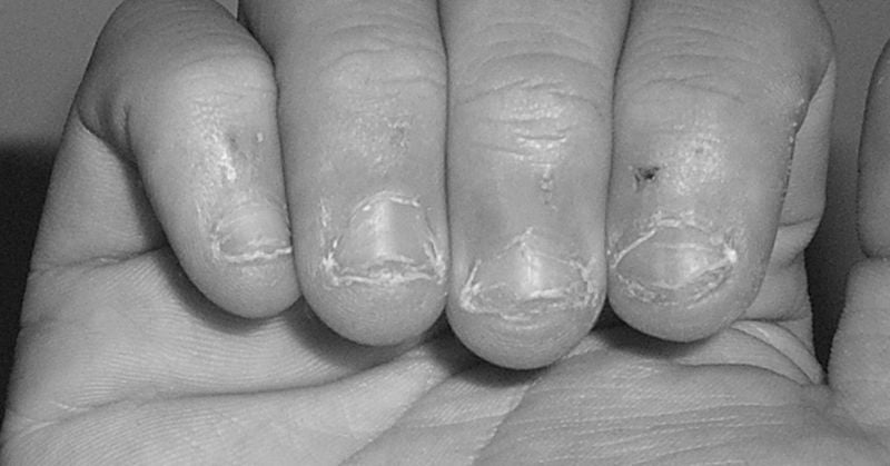 Nail Biting: Not just a habit but a health problem