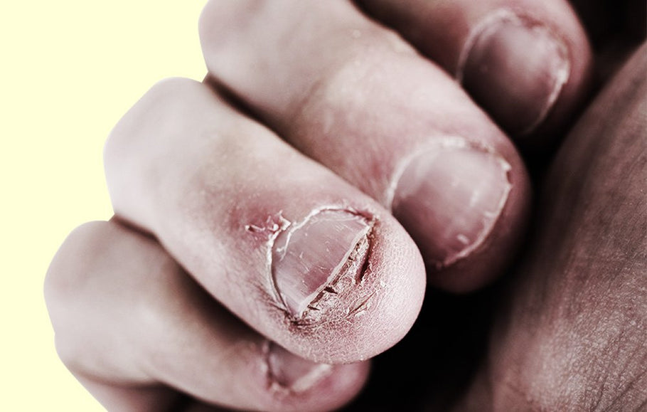 7 Gross Things That Happen When You Bite Your Nails