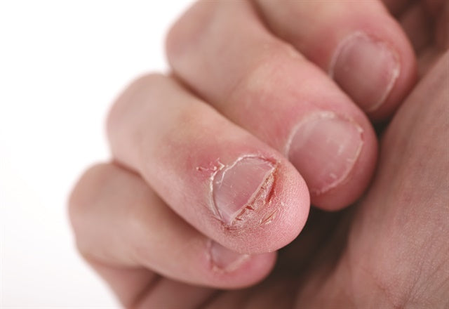 Dr. Stern discusses complications and concerns surrounding nail-biting, along with several effective treatment options