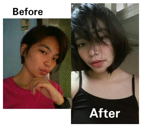 Before After Glutathione Roan