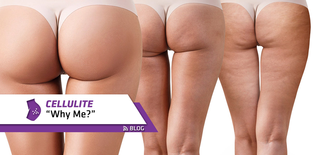 Cellulite Why Me Elite Supps