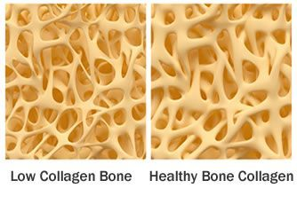Collagen for bone loss