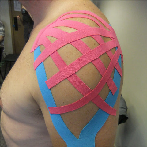 Muscle Taping Therapy (& Magnet Therapy)