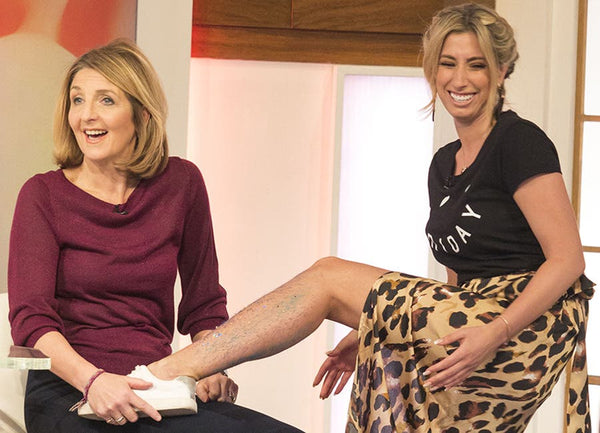 Stacey women proudly showing hairy legs on Loose Women-Rani & Co.