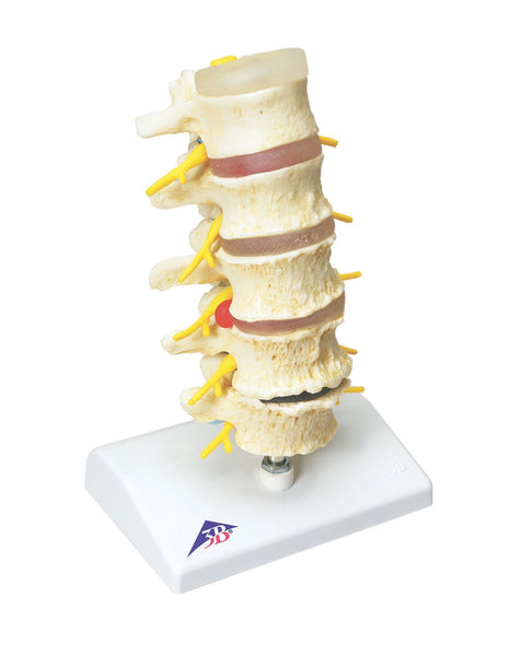 Anatomical Model - vertebrae degeneration, stages of prolapsed disc