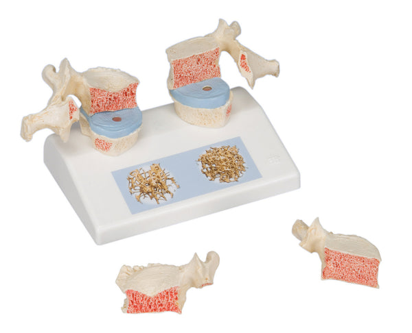Anatomical Model - osteoporosis model