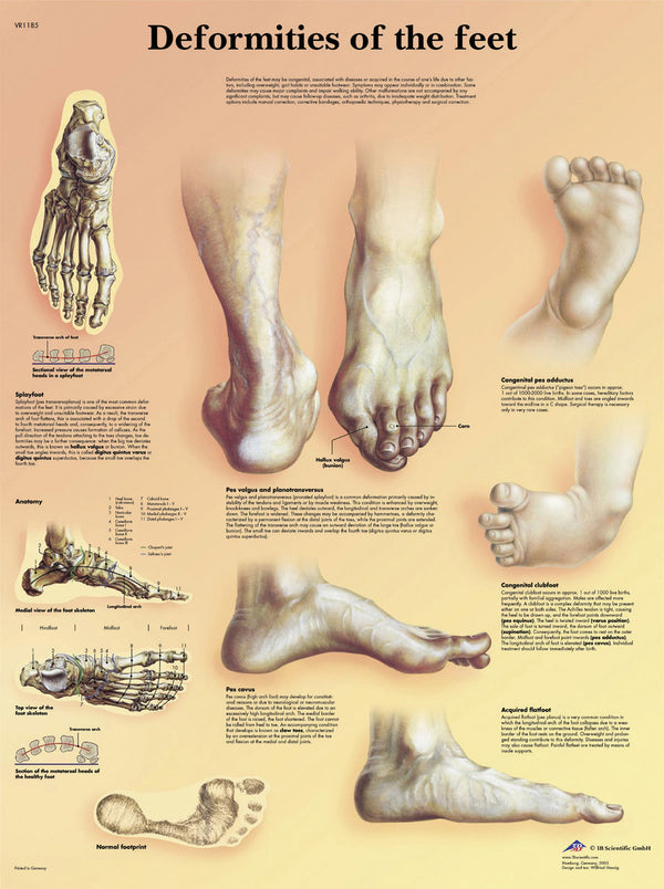 Anatomical Chart - deformities of the feet laminated