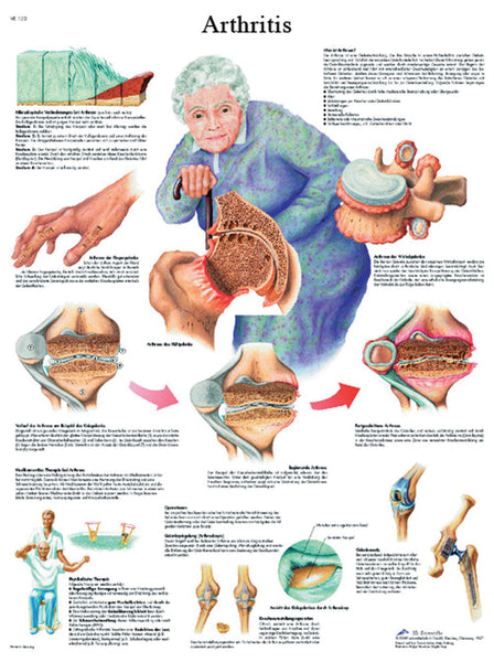 Anatomical Chart - arthritis, laminated