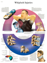 Anatomical Chart - whiplash, laminated
