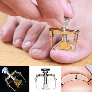 Ingrown Nail Tool