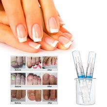 Nail Fungus Repair Pen