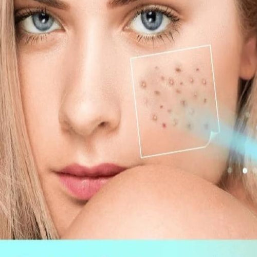 MEDZDERM™ Blue Light Acne & Skin Spot Remover