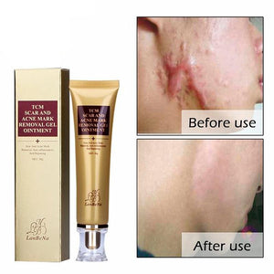 Natural Ginseng Extract Acne Cream