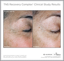 TNS Recovery Complex Results