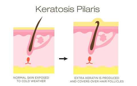 Keratosis skin compared to normal skin chart
