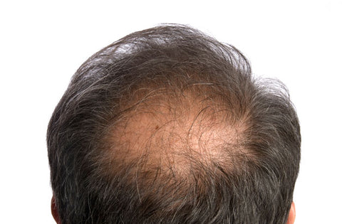Natural remedies to grow hair on bald head