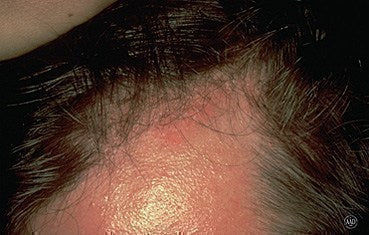 Is Seborrheic Dermatitis Hair Loss Permanent Dr Yu S