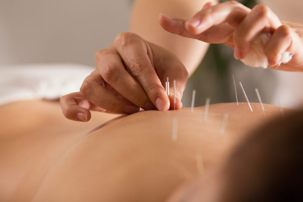 Is it Effective to Use Acupuncture for Lower Back Pain ...