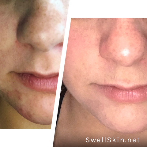 Swell Skin Before & After Photos - Actual Customer Results - Clear Skin - Skincare