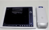Wifi Wireless Linear Array Probe Type Ultrasound Scanner 7.5-10Mhz/128E + <B>FREE SHIPPING</B>