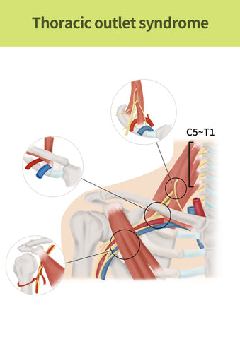 Medical illustration to explain Thoracic outlet syndrome