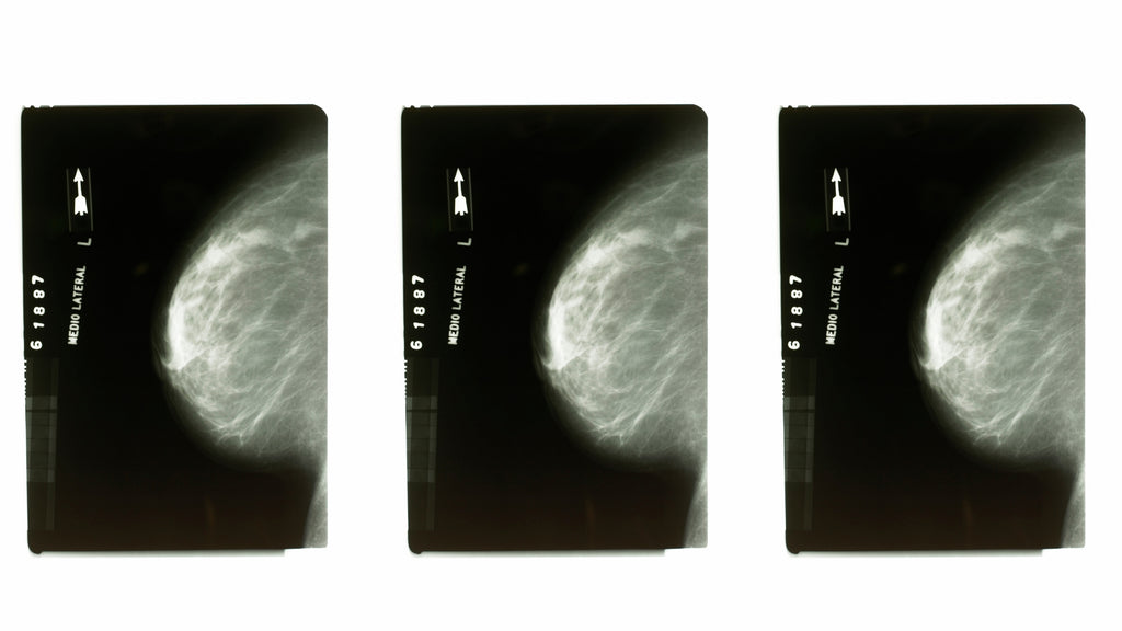 nood blog post 10 things to know about mammograms