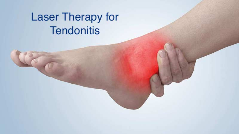 Why Laser Therapy is the Best Way to Treat the Tendonitis