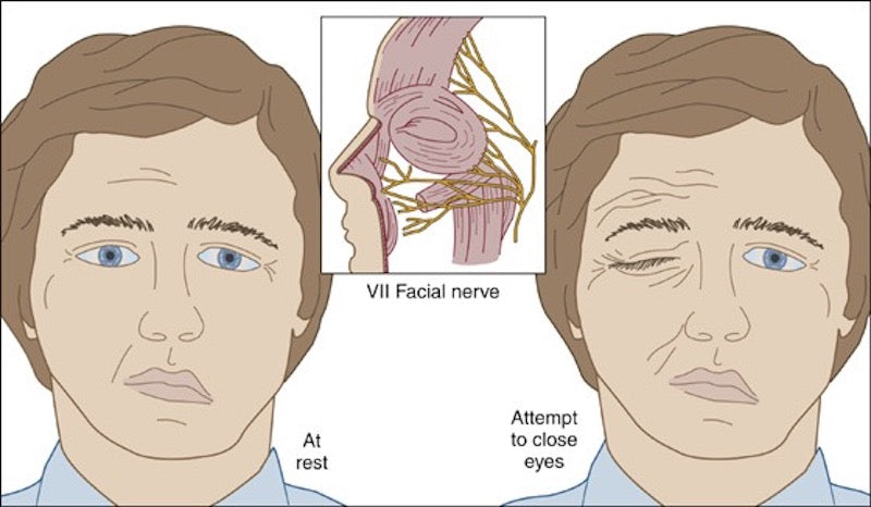 Laser Therapy for diopathic Facial (Bell's) Palsy